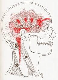 Headaches2